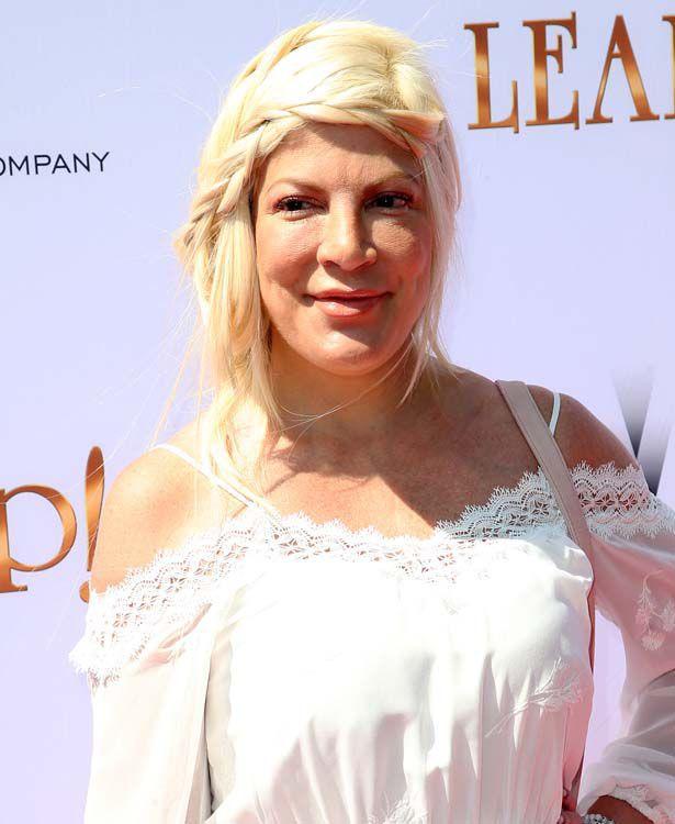Tori Spelling über ihren Fauxpas im Gesicht