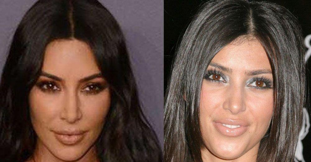 Kim Kardashian hatte nie eine Nasen-Op – sagt sie