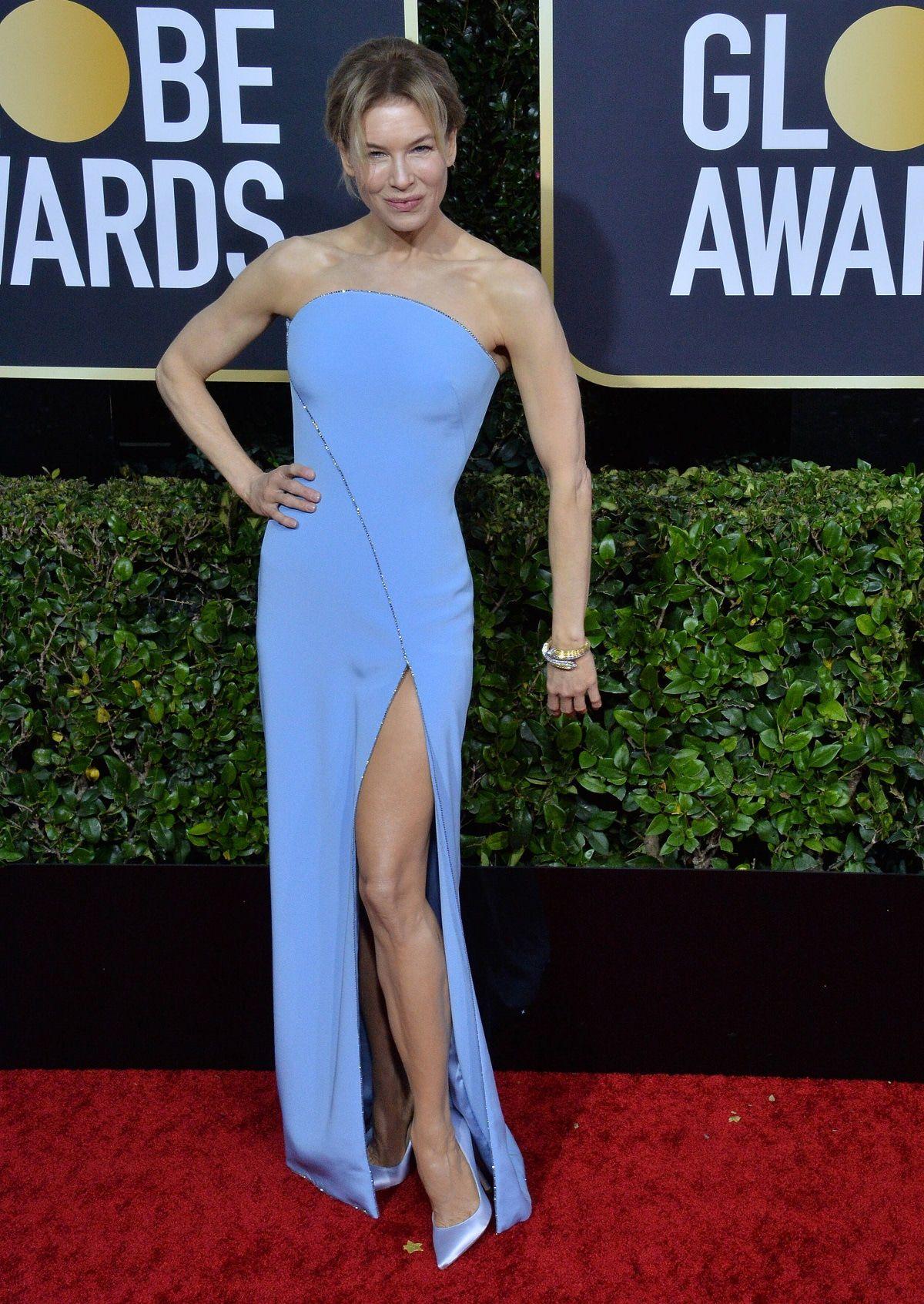 """Renée Zellweger erklärt ihr """"Golden Globes""""-Outfit"""