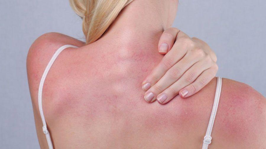 Bei einem Sonnenbrand ist schnelles Handeln gefragt. (amw/spot)
