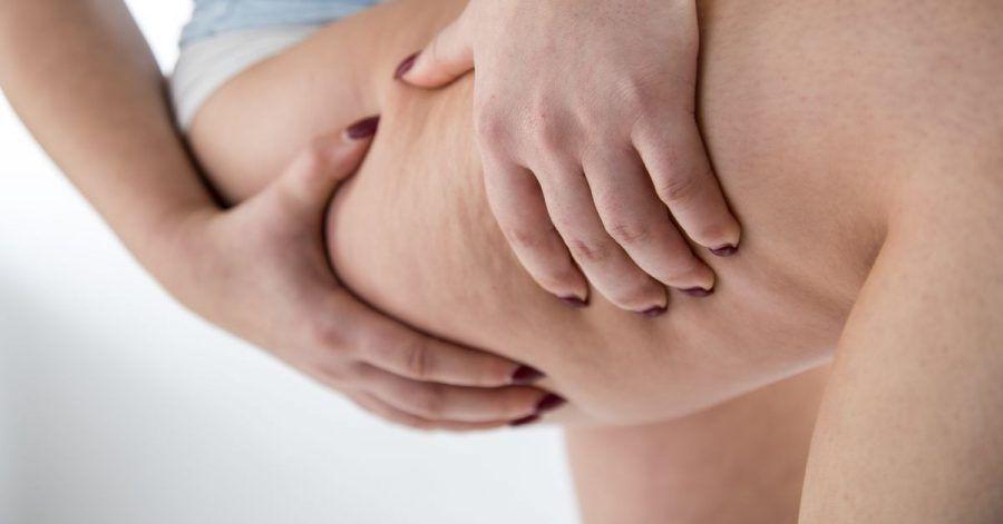 Beim Lipödem vermehrt sich Fettgewebe an den Beinen und Armen und lässt sich weder mit Sport noch Diäten abbauen.