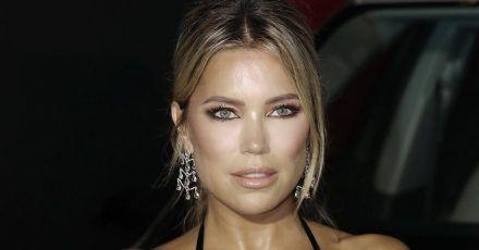 Sylvie Meis: DAS hat sie beim Beauty-Doc machen lassen