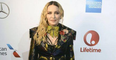 Madonna zeigt ihre krasse OP-Narbe