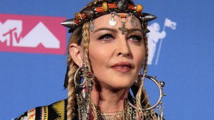 Madonnas Gesicht entstellt - Ihre Fans geschockt!