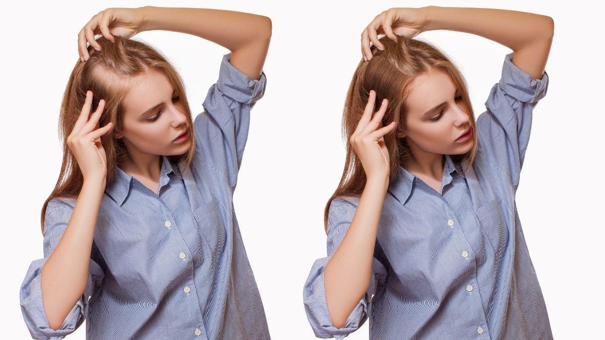 Geheimratsecken bei Frauen: Effektiv behandeln mit Haarlinienkorrektur