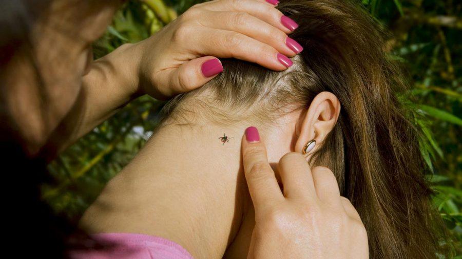 Zecken beißen sich gern am Haaransatz fest. (eee/spot)