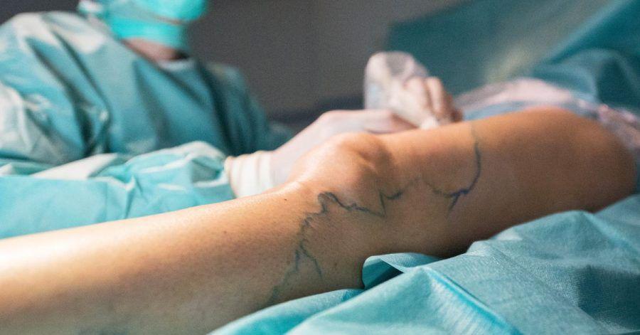 Verkleben oder Strippen: Für die Behandlung von Krampfadern gibt es unterschiedliche Methoden.