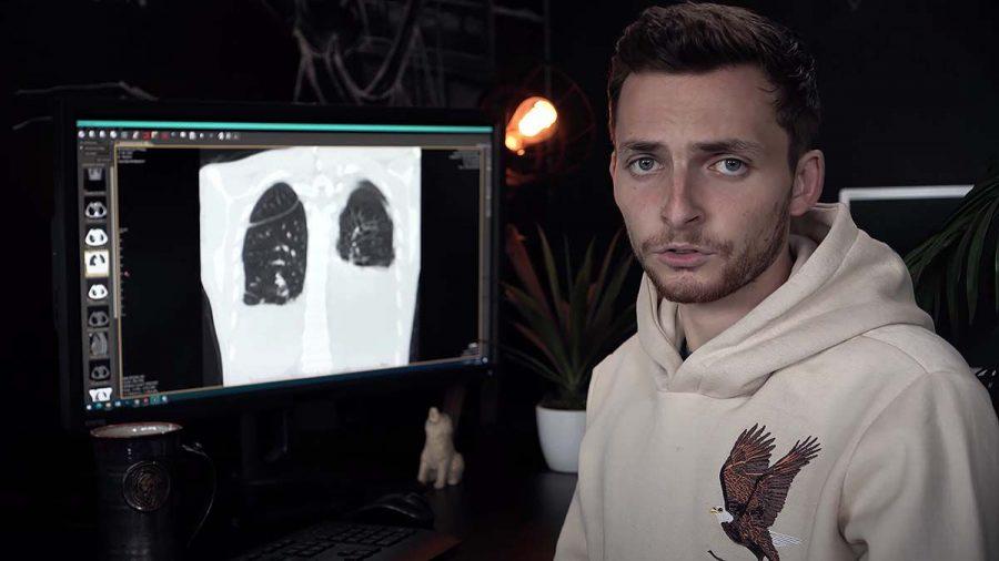 Youtube-Star Philipp Mickenberger: Der Tumor verschiebt das Herz