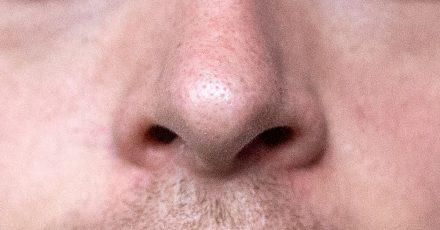 Viele Menschen mit Parkinson haben einen gestörten Geruchssinn - das Symptom zeigt sich oft schon in einem frühen Krankheitsstadium.