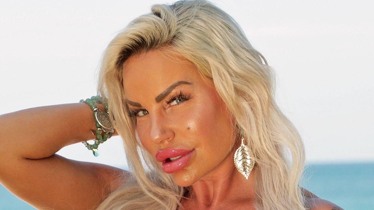 Gina-Lisa Lohfink: Was ist mit ihrem Gesicht passiert? Ein Facharzt klärt auf!