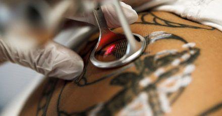 Wird ein Tattoo per Laser entfernt, muss die Behandlung in der Regel mehrmals wiederholt werden.