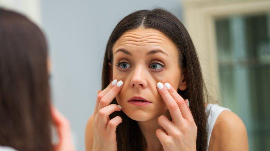 Unser Lebensstil kann für Augenringe verantwortlich sein. (ncz/spot)