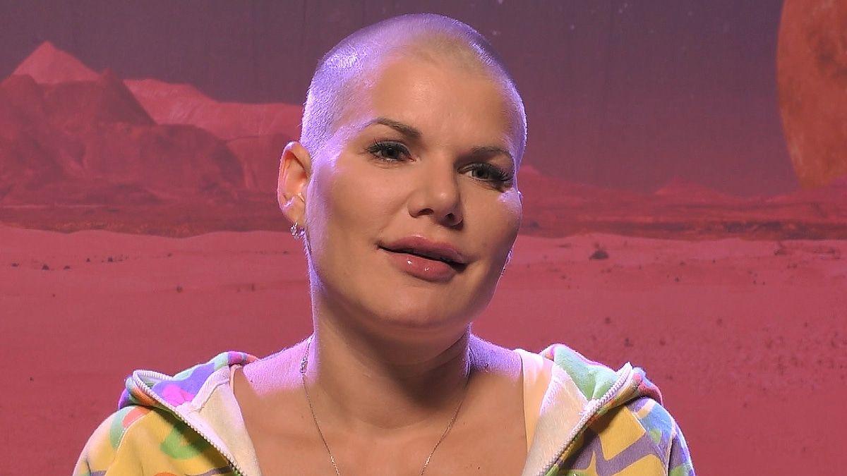 Sylvie Meis will mit Botox in Würde altern