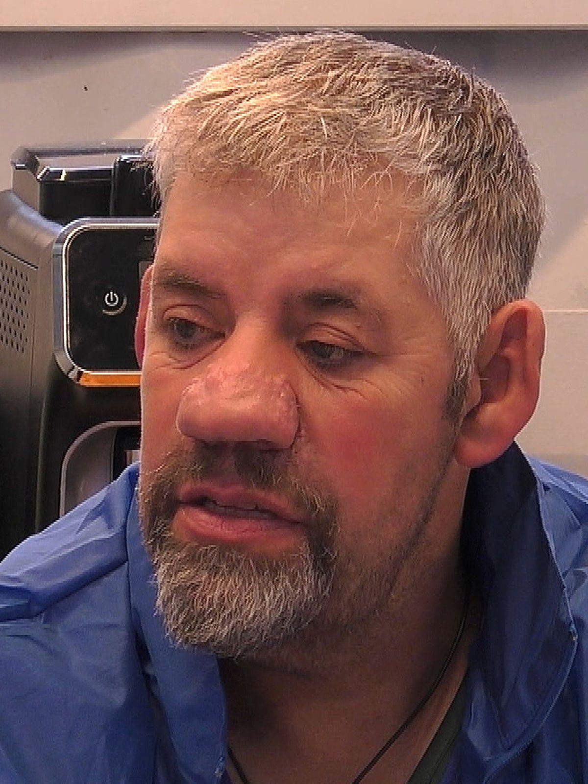 Uwe Abel: Kann die große Nase operiert werden? Das sagt ein Facharzt!