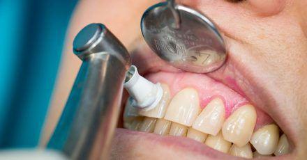 Regelmäßige professionelle Zahnreinigungen beugen Zahnfleischproblemen vor.